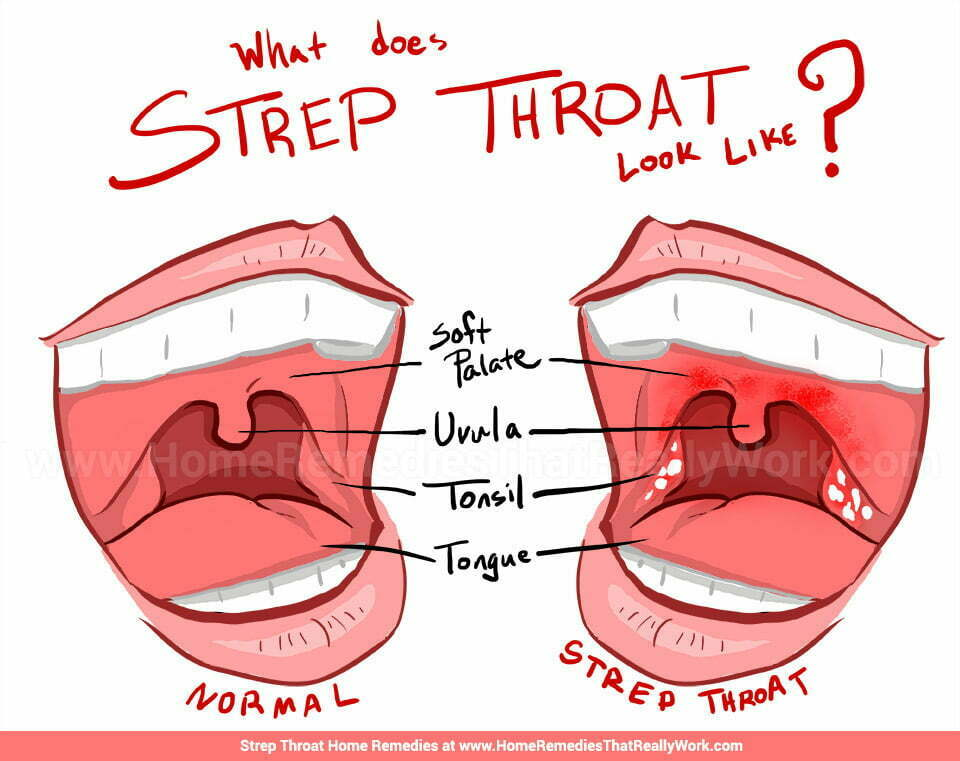 The secret reason we treat strep throat  Chad Hayes MD
