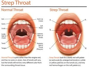 Adult strep throat pictures